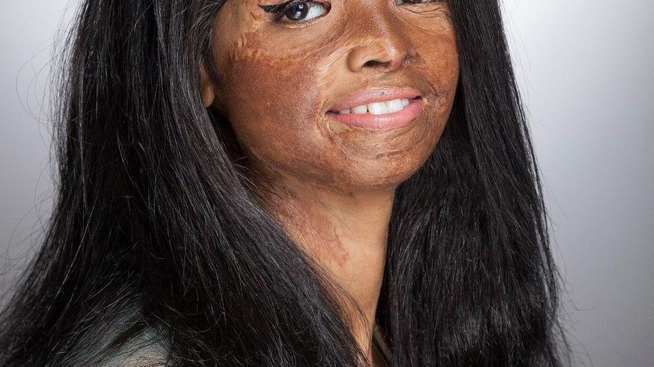 Des victimes d'attaques à l'acide dévoilent leurs cicatrices pour la bonne cause