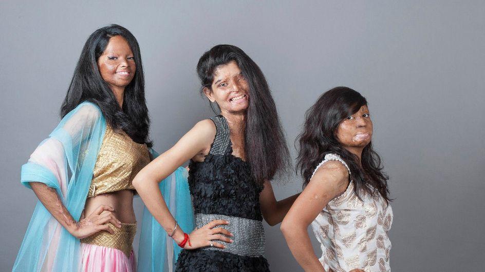 Gedemütigt, verstoßen, misshandelt: Diese mutige Inderin macht ihre Träume trotzdem wahr!
