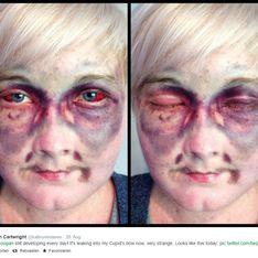 Schockierendes Selfie: Doch dieses Mädchen hat etwas zu sagen!