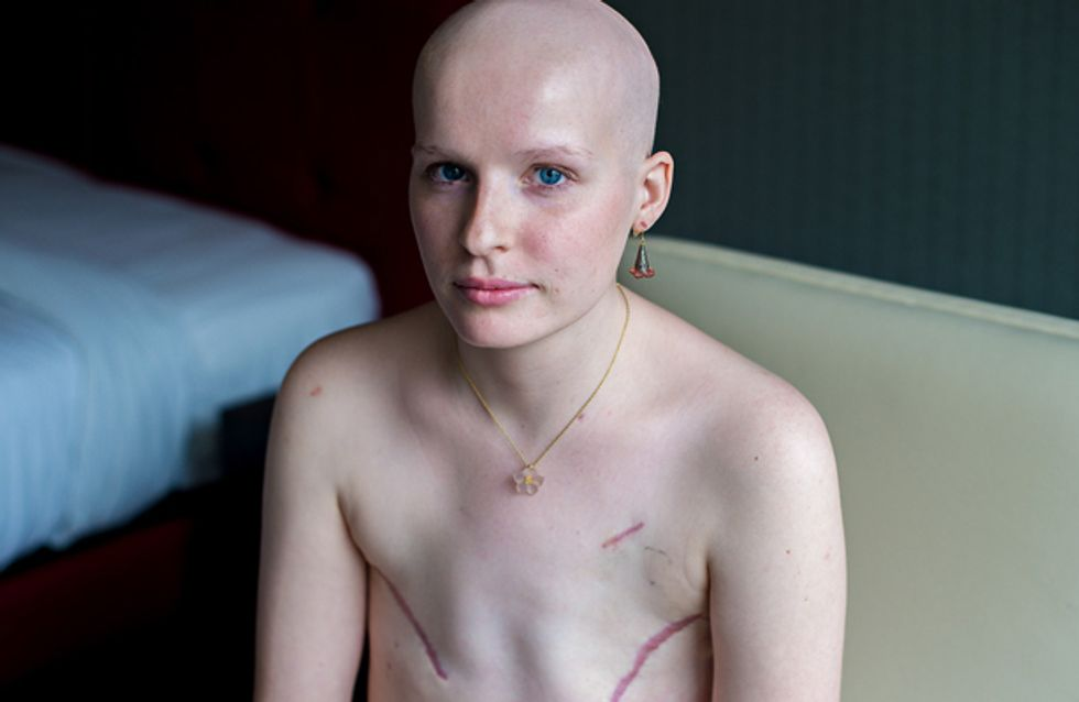 This Is What Living With Breast Cancer Really Looks Like