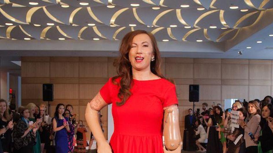 Une femme amputée devient la reine des podiums