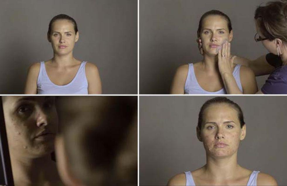Come cambia l'autostima? Ecco l'impatto emotivo che può avere l'acne su una modella