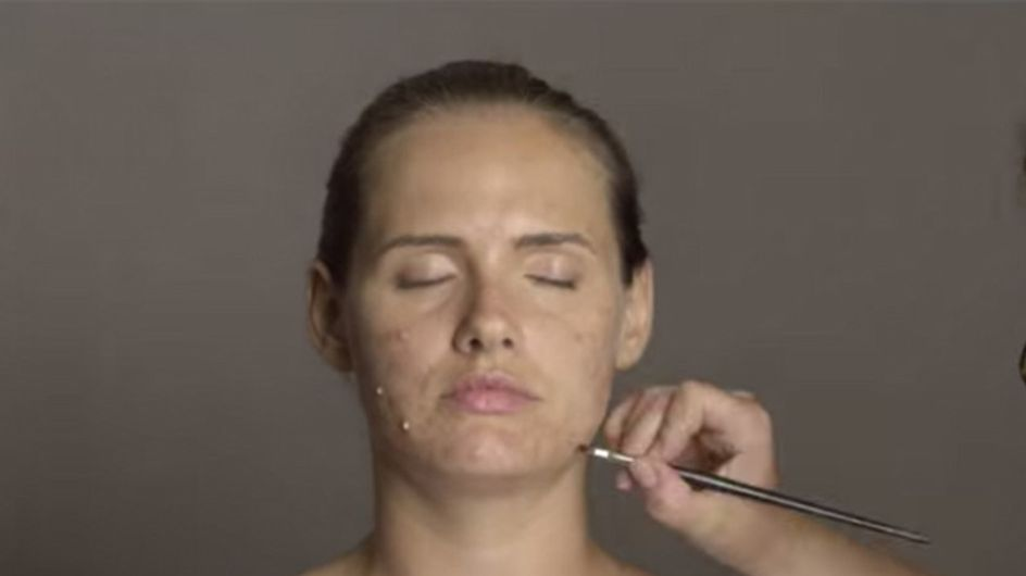 How Adult Acne Really Feels: Model Transforms Herself With Makeup To Find Out