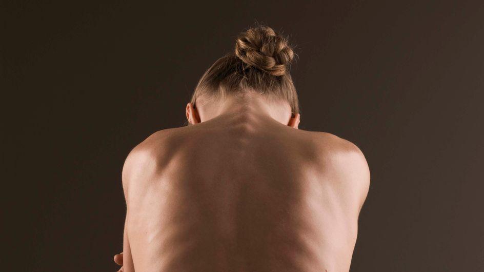 Anorexie, boulimie… et si tout venait d'une bactérie ?