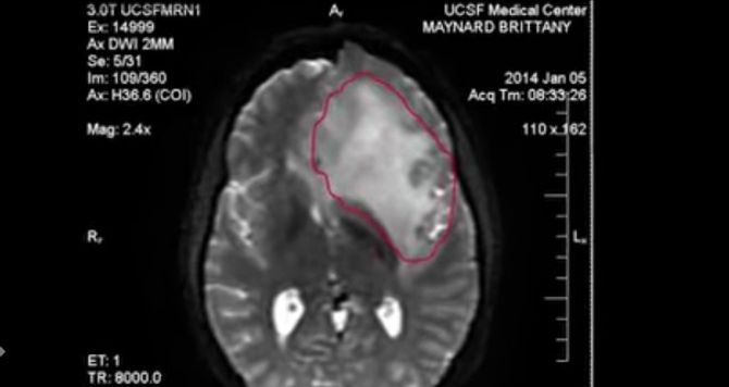 Le cerveau de Brittany Maynard atteinte d'un cancer
