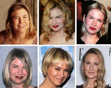 Le immagini di Renée Zellweger messe a confronto