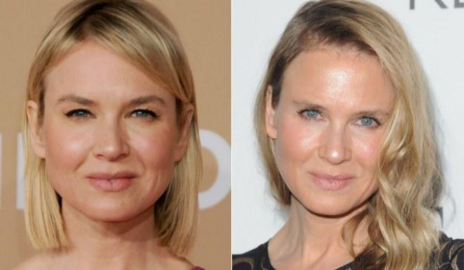 Renée Zellweger 2010 und 2014