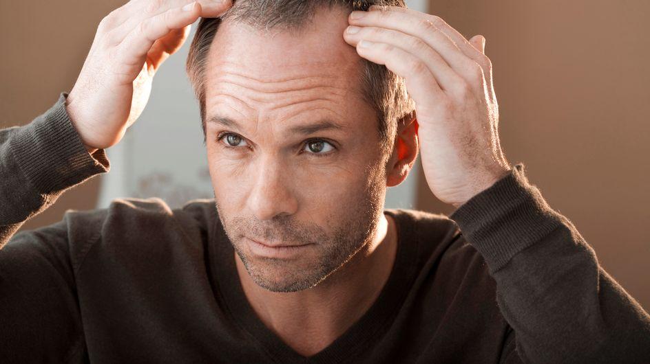 ¡Piérdele el miedo a los trasplantes de pelo!