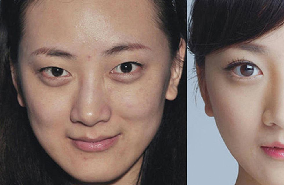 Extreme Plastic Surgery Made These Women Unrecognizable At The Airport