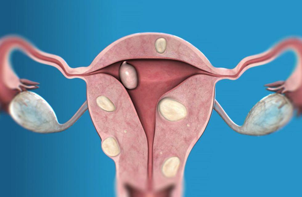 Fibromi uterini: addio sì, ma senza bisturi
