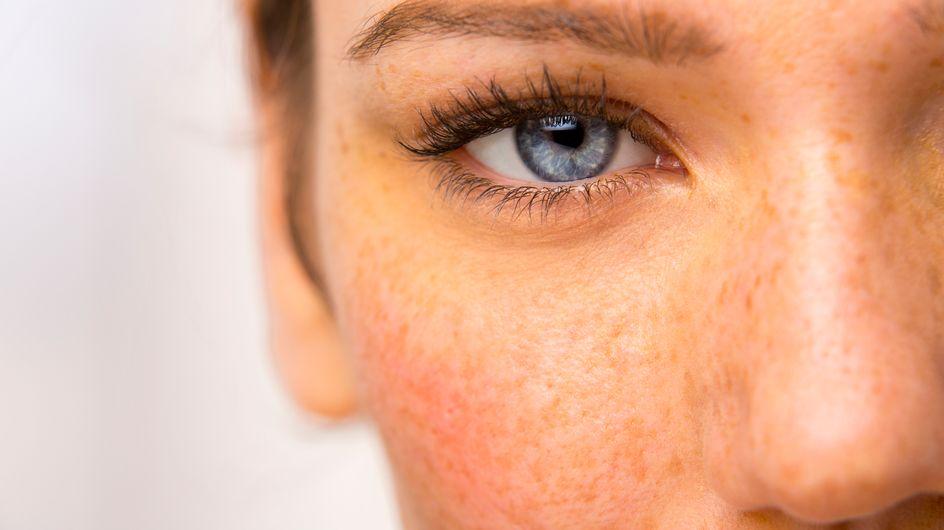 Cómo combatir las manchas en la piel