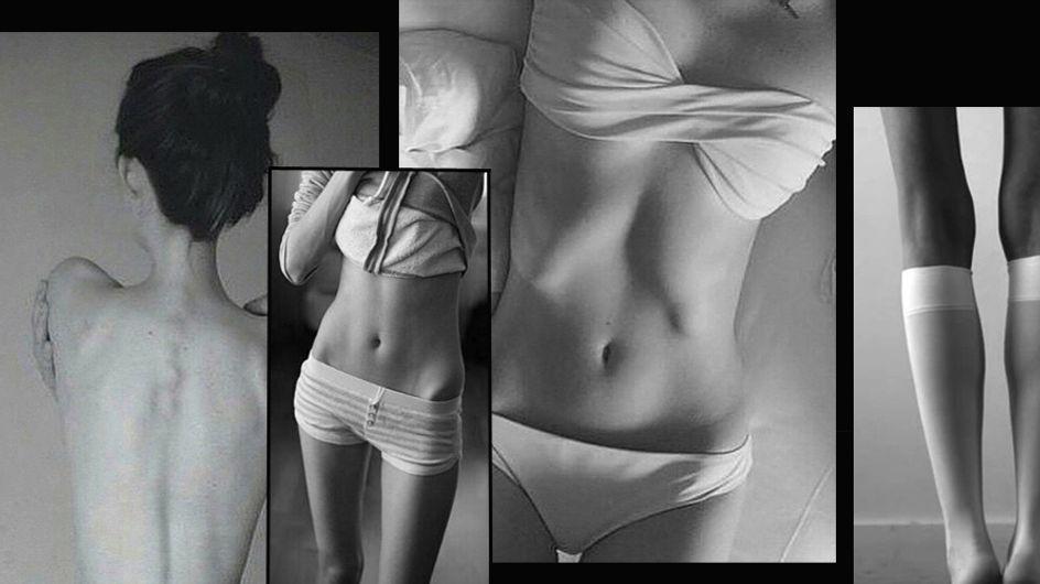 Dünn, dünner, Thinspiration - der gruselige Schlankheitswahn auf Instagram