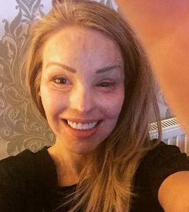 Katie Piper, défigurée à l'acide par son ex-compagnon : Fière d'être une surviv