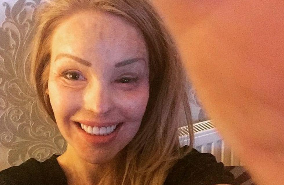 """Katie Piper, défigurée à l'acide par son ex-compagnon : """"Fière d'être une survivante"""""""