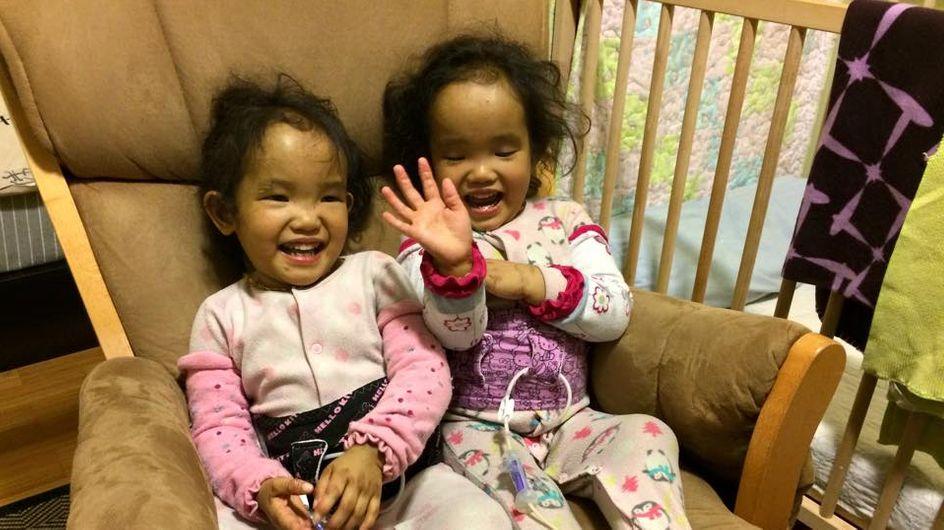 1 Organ, 2 Kinder: Diese Zwillings-Mädchen brauchen dringend einen Spender!