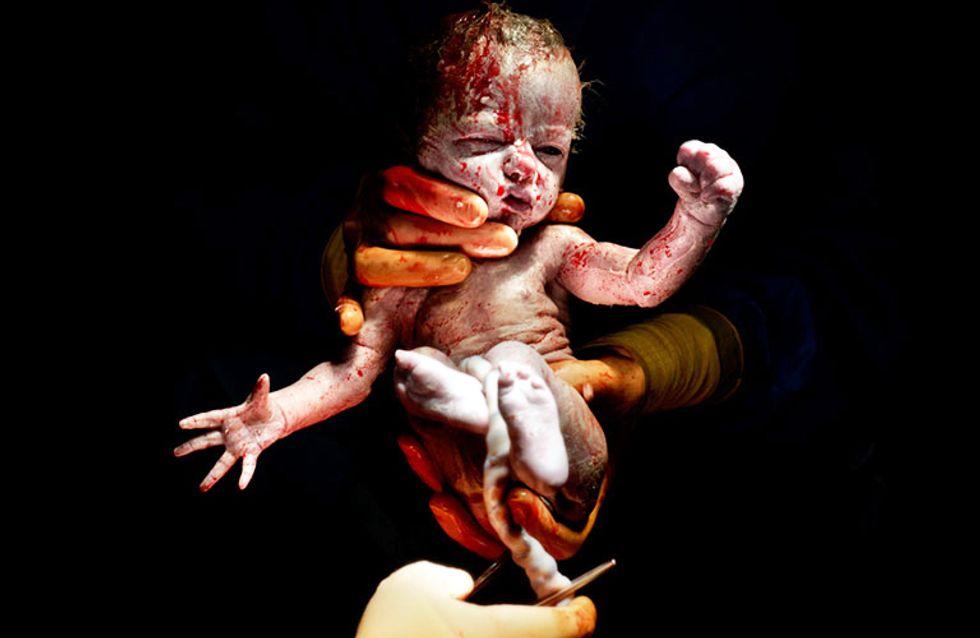 Cuando la vida se mide en segundos: Asombrosas fotografías de bebes justo después de nacer