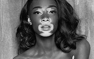 Model mit Weißfleckenkrankheit: Sie ist der Star auf der NY Fashion Week!