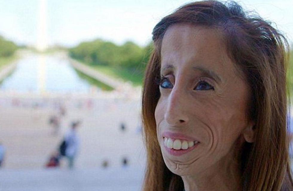 Sie nannten sie 'hässlichste Frau der Welt'. Doch Lizzie will kein Mobbing-Opfer mehr sein
