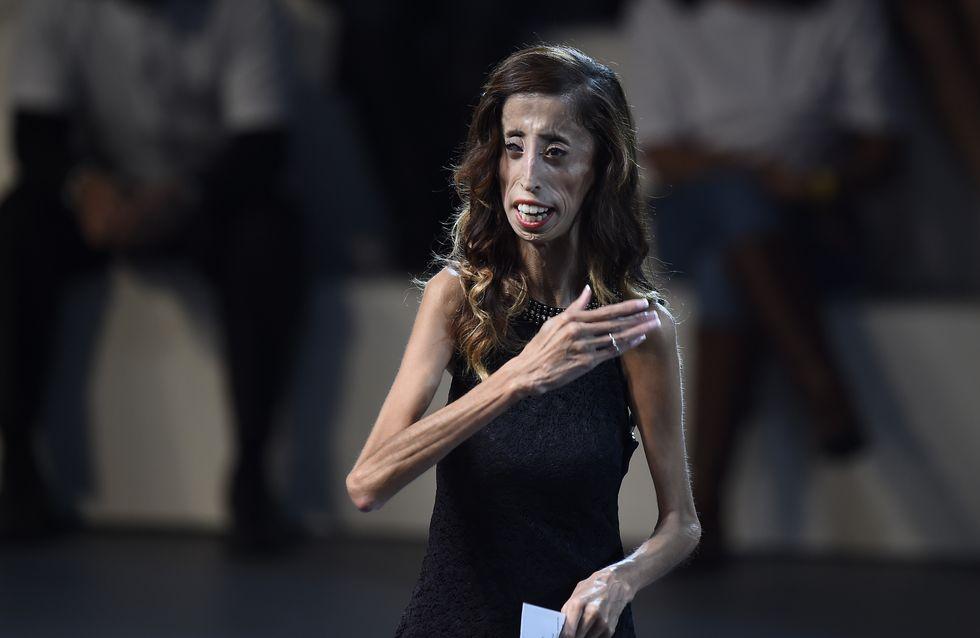Le courageux combat de Lizzie Velasquez contre le cyber-harcèlement