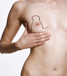 Ptose mammaire : la corriger pour se réconcilier avec son corps