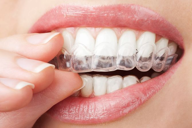 Blanchir ses dents