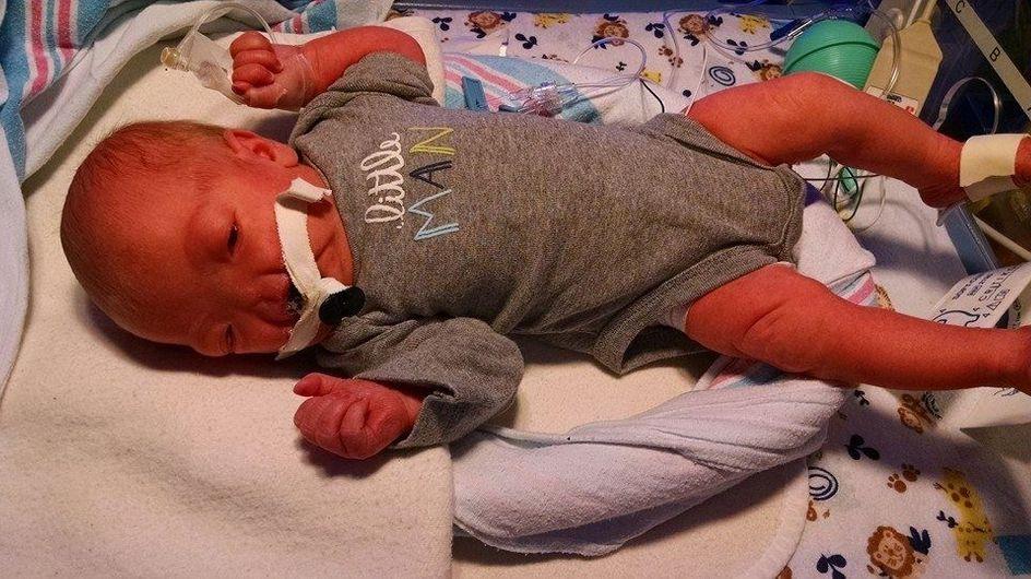 Ce bébé a vu le jour sans nez et la Toile a décidé de l'aider