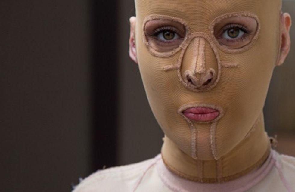La increíble historia de Dana, la joven que descubre su rostro dos años después de que se lo quemasen