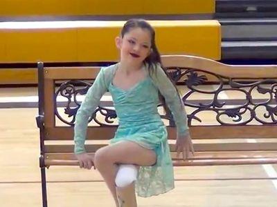 Cette petite fille a perdu sa jambe mais rien ne peut l'empêcher de danser