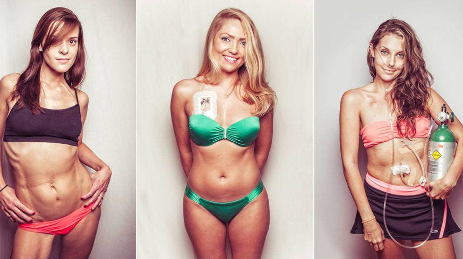 Diese Frauen teilen alle ein schweres Schicksal - und dennoch posieren sie absolut selbstbewusst