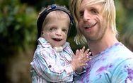 'Vídeo' Un joven sufrió bullying por su aspecto y ahora ayuda a niños con su mis
