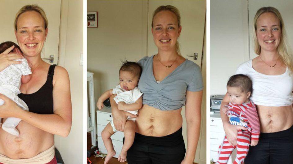 Diese Bloggerin will zeigen: SO sieht ein Bauch nach der Schwangerschaft wirklich aus