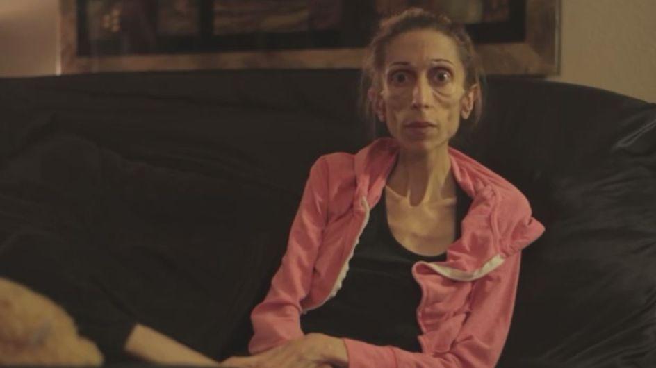 La femme de la semaine : Rachael Farrokh, son long combat contre l'anorexie extrême (Vidéo)