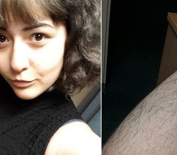 Ich rasiere mich nicht: Diese 19-Jährige sorgt wegen ihrer Körperhaare für Dis