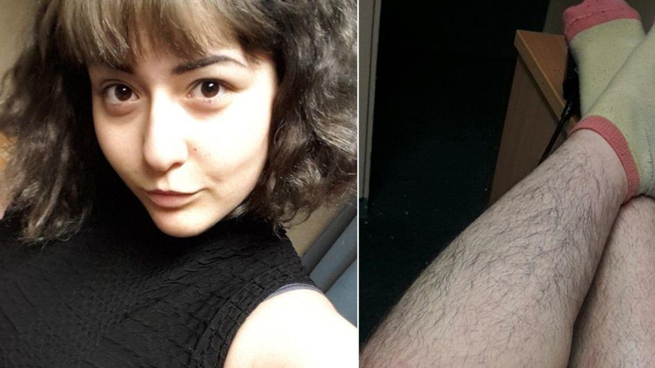"""""""Ich rasiere mich nicht"""": Diese 19-Jährige sorgt wegen ihrer Körperhaare für Diskussion"""