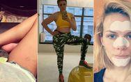Dehnungsstreifen, Akne und Cellulite: Diese 10 Promidamen stehen zu ihren Makeln