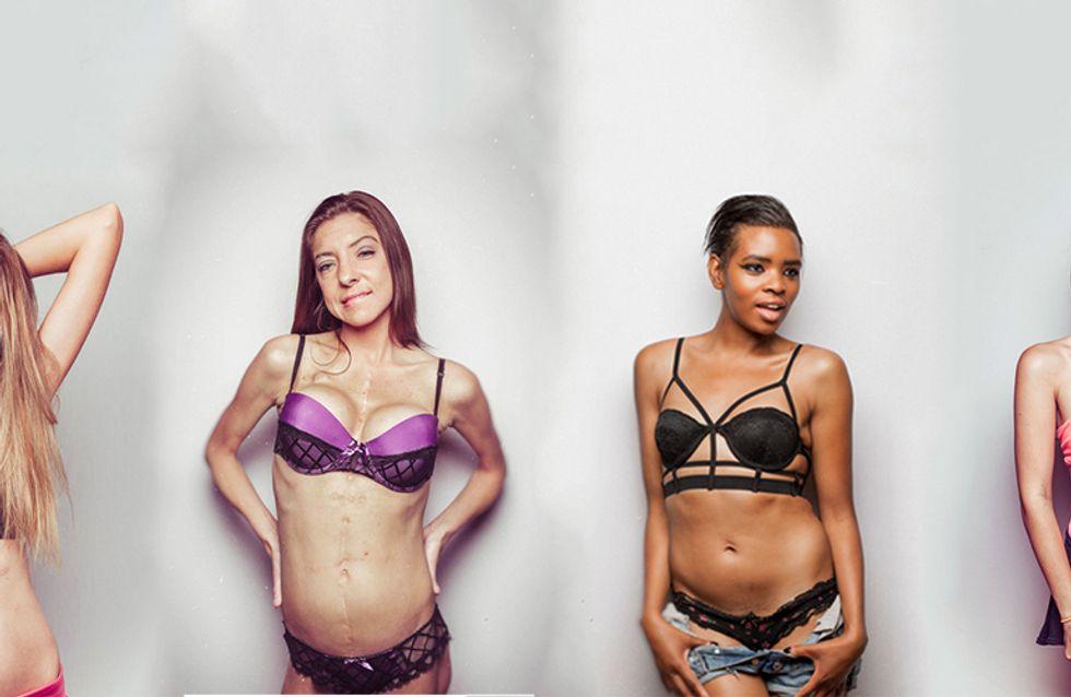 Belleza en vez de cicatrices: el fotógrafo que retrata a mujeres con fibrosis quística