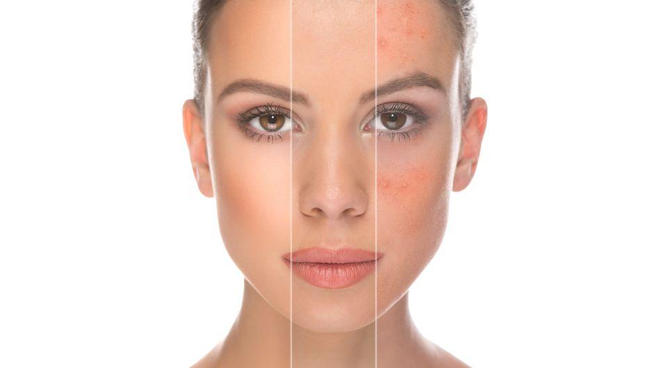 #YouLookDisgusting, belleza más allá del acné