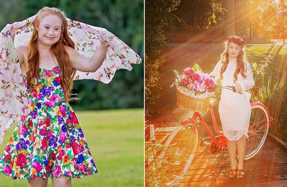 Erfolgreiches Model mit Down-Syndrom: So kämpft Madeline für mehr Akzeptanz