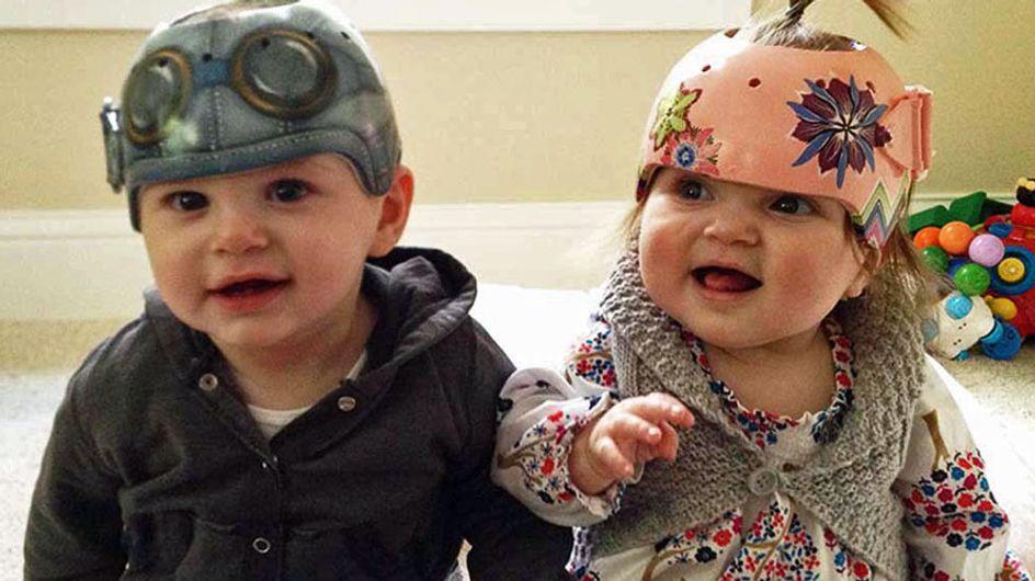 Una artista pinta cascos originales para bebés con síndrome de cabeza plana