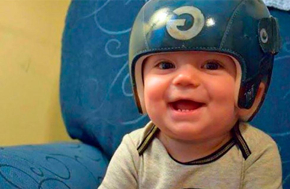 Artista pinta capacetes para bebês com síndrome da cabeça plana