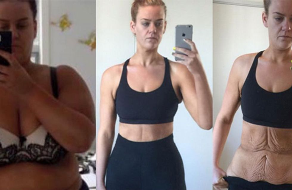 Simone Anderson Shuts Down Haters With Brave Before And After Weight Loss Photos