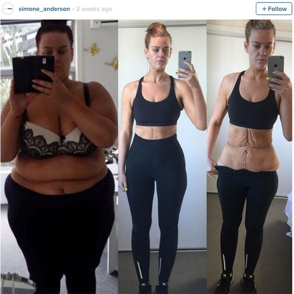 Simone Anderson Shuts Down Haters With Brave Weight Loss Photos