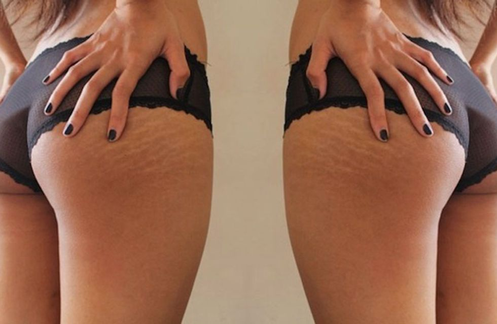 Women Are Celebrating Their Imperfections With #ThighReading