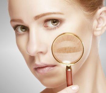 Macchie della pelle: i rimedi naturali migliori per contrastarle