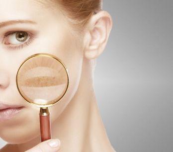 9 remedios caseros para olvidarte de las manchas de la piel