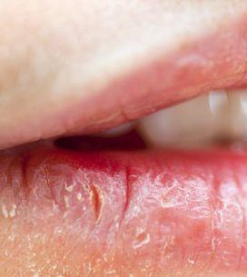 Secche e irritate: scopri come prevenire e curare in modo naturale la labbra scr