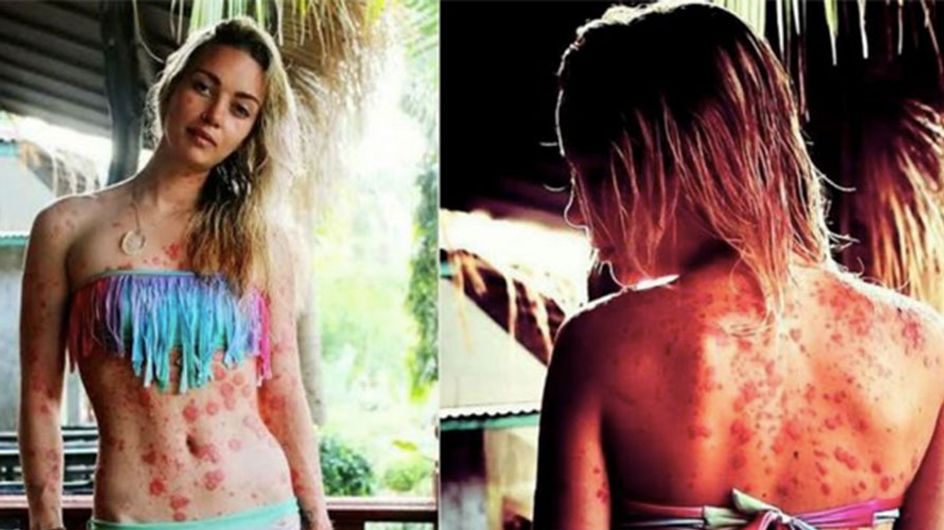 Psoriasis Sufferer Finally Feels Beautiful In Her Own Skin After Years Of Feeling Like A 'Freak'