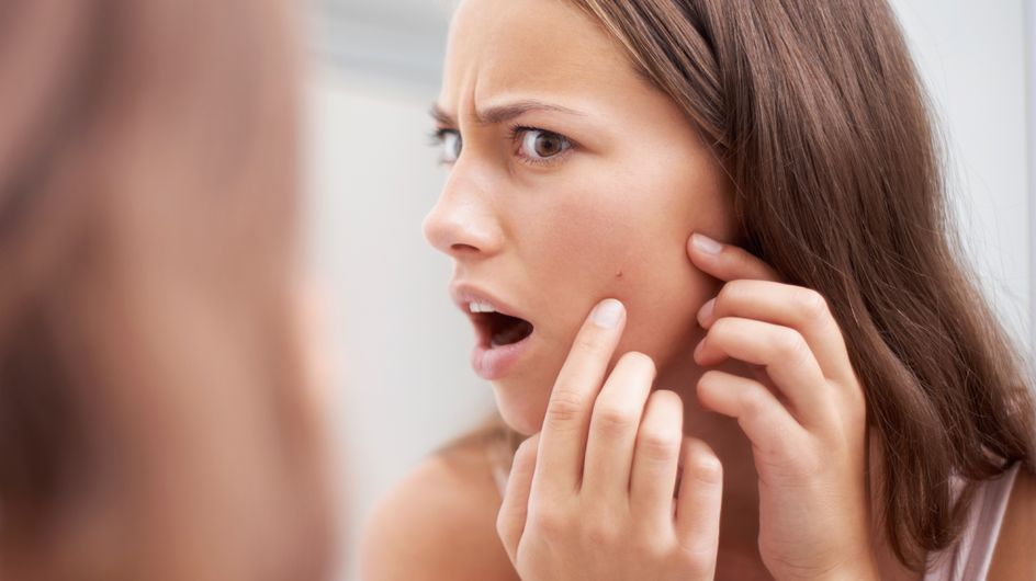 10 gestes qui stimulent la poussée d'acné