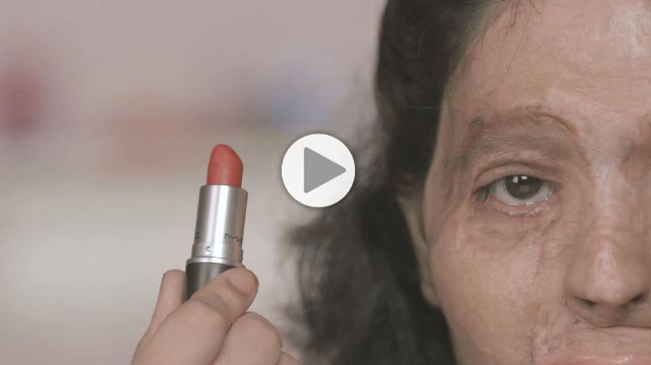 Victime d'une attaque à l'acide, elle réalise des tutoriels beauté poignants (Vidéos)