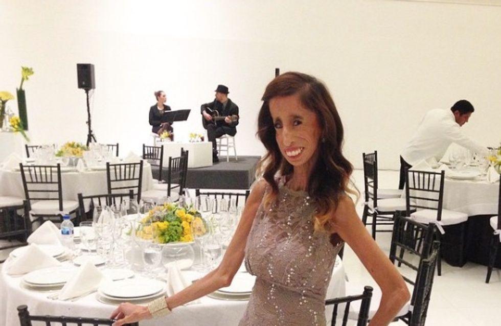 Lizzie Velasquez remercie ses haters soutenue par Kylie Jenner